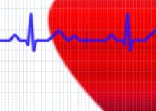 Ejemplo del cardiograma fotos de archivo