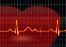 Ejemplo del cardiograma imagenes de archivo