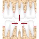 Ejemplo del diente que falta ilustración del vector