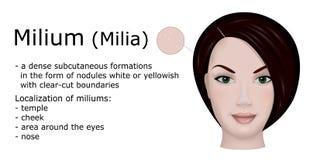 Ejemplo del Milium Imagen de archivo