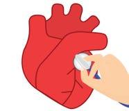 Ejemplo del vector de la auscultación del corazón Fotografía de archivo