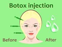 Ejemplo del vector de la cirugía cosmética Inyección de Botox tratamiento facial de la arruga de las mujeres ilustración del vector