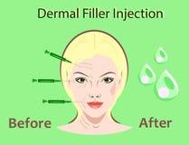 Ejemplo del vector de la cirugía cosmética Inyección del llenador tratamiento facial de la arruga de la mujer ilustración del vector