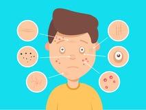 Ejemplo facial masculino de los problemas de piel Acné y puntos oscuros, arrugas y círculos debajo de los ojos para los cosmético ilustración del vector