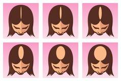 Ejemplo femenino de la pérdida de pelo ilustración del vector