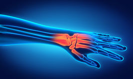 Ejemplo humano de la anatomía de la mano Foto de archivo