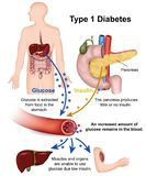 Ejemplo médico de la diabetes del tipo 1 con la descripción inglesa ilustración del vector