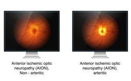Ejemplo médico de la neuropatía isquémica óptica ilustración del vector