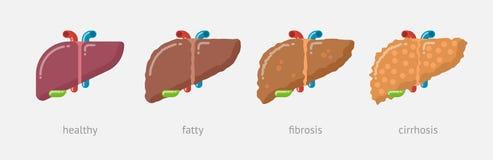 Ejemplo plano del diseño de etapas del daño hepático imagen de archivo