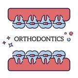 Ejemplo plano del vector en el fondo blanco en estilo de la historieta Mandíbula con los dientes en apoyos Procedimiento del Orth libre illustration