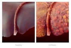 Ejemplo realista de hígados humanos sanos y enfermos Foto de archivo libre de regalías