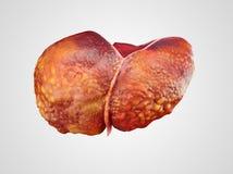 Ejemplo realista de la cirrosis del hígado humano Fotografía de archivo libre de regalías
