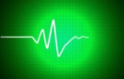 EKG信号 免版税库存图片