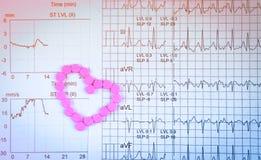 EKG或ECG心电图图表报告纸 EST行使由药片和桃红色心脏形状做的压力测试结果 Packa 图库摄影