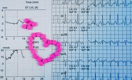 EKG或ECG心电图图表报告纸 EST行使由药片和桃红色心脏形状做的压力测试结果 Packa 免版税图库摄影