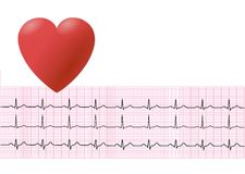 EKG 1 Royalty Free Stock Photos