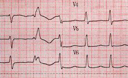 EKG Lizenzfreie Stockfotos