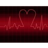 EKG Royalty Free Stock Photo