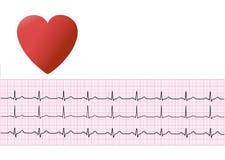 EKG 2 Stock Image