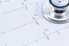 EKG. A EKG sits under a stethoscope Stock Images