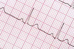EKG Royalty Free Stock Photography
