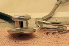 EKG Lizenzfreies Stockfoto
