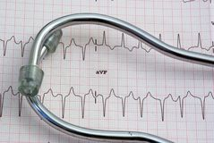 EKG Royalty Free Stock Photos