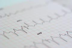 EKG Imagens de Stock