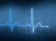 EKG Стоковое Изображение