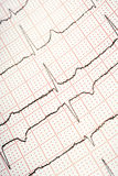 EKG. A closup of an electrocardiogram Royalty Free Stock Photo