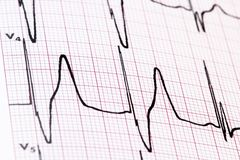 Ekg Stock Photos