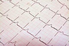 EKG Στοκ Εικόνα