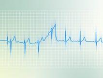 EKG Stock Image