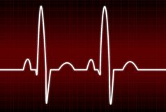EKG. Illustration of a normal EKG rhythm Royalty Free Stock Photography
