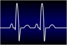 EKG. Illustration of a normal EKG rhythm Royalty Free Stock Photos