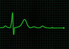 EKG. Vector EKG neon green monitor Royalty Free Stock Photo