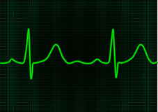 EKG. Vector EKG neon green monitor Royalty Free Stock Images