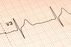 Free EKG Royalty Free Stock Photography - 702977