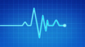 EKG. Signal on blue technology background Stock Images
