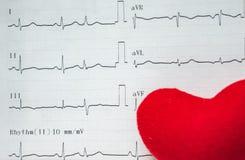 EKG analizy papierowy seans anormalny pacjenci w szpitalu EKG zdjęcie stock