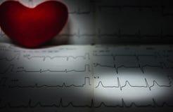 EKG analizy papierowy seans anormalny pacjenci w szpitalu EKG obrazy royalty free