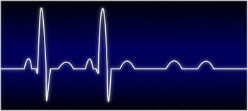 EKG anormal (bloc de poids du commerce) Images libres de droits
