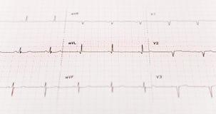 EKG avec l'orientation sélectrice Images libres de droits