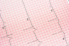 EKG background Royalty Free Stock Photos