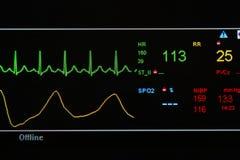 EKG-bildskärm i ICU-enhet Arkivbilder