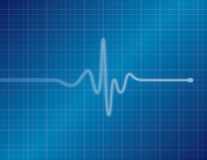 EKG - Blue. Single pulse blue EKG (ECG Stock Photo