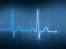 EKG. Blue Electrocardiography Heart Beat Pulse on Graph Stock Image