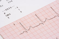 EKG chart Royalty Free Stock Image