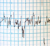 EKG Stock Images