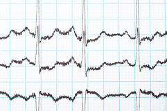 EKG diagram Royalty Free Stock Photography